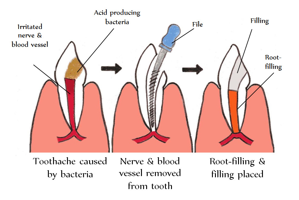 Root Canal Treatment Steps Root Canal Treatment Root